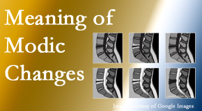 Dr. Le's Chiropractic & Wellness, L.L.C. sees many back pain and neck pain patients who bring their MRIs with them to the office. Modic changes are often noted.