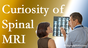 Auburn MRIs for spinal stenosis may be revealing…or confusing.