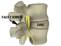 image of facet joints and disc in a spine