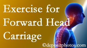 Auburn chiropractic treatment of forward head carriage is two-fold: manipulation and exercise.
