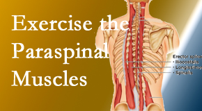 Dr. Le's Chiropractic & Wellness, L.L.C. describes the importance of paraspinal muscles and their strength for Auburn back pain relief.