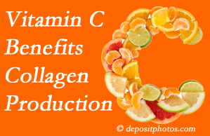 Auburn chiropractic offers tips on nutrition like vitamin C for boosting collagen production that decreases in musculoskeletal conditions.